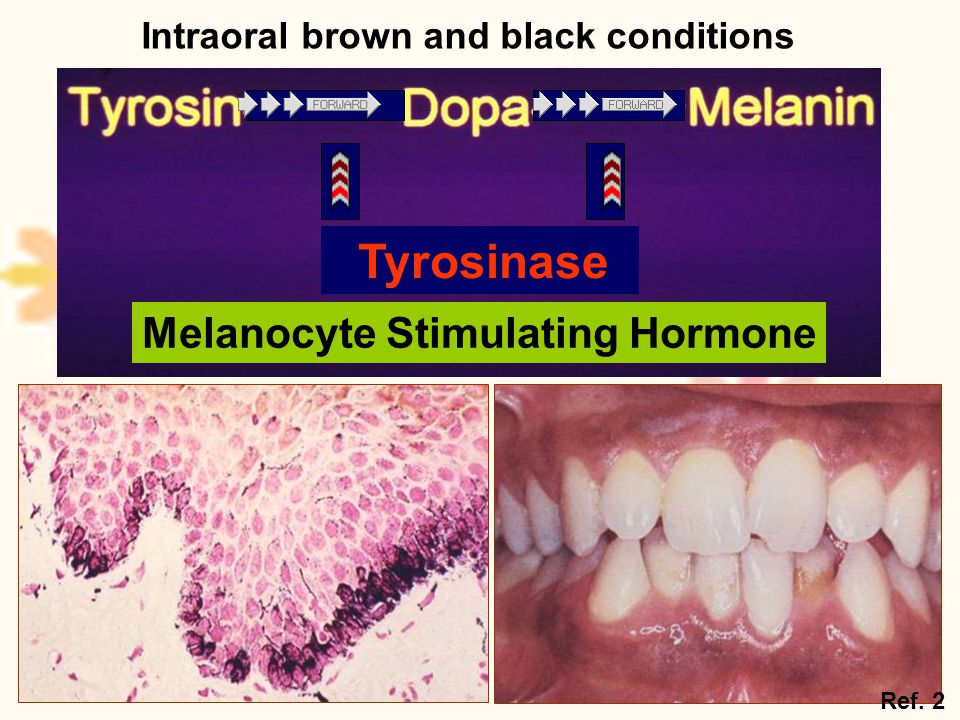 Melanocyte Stimulating Hormone Tyrosinase Ref. 2 Intraoral brown and black conditions