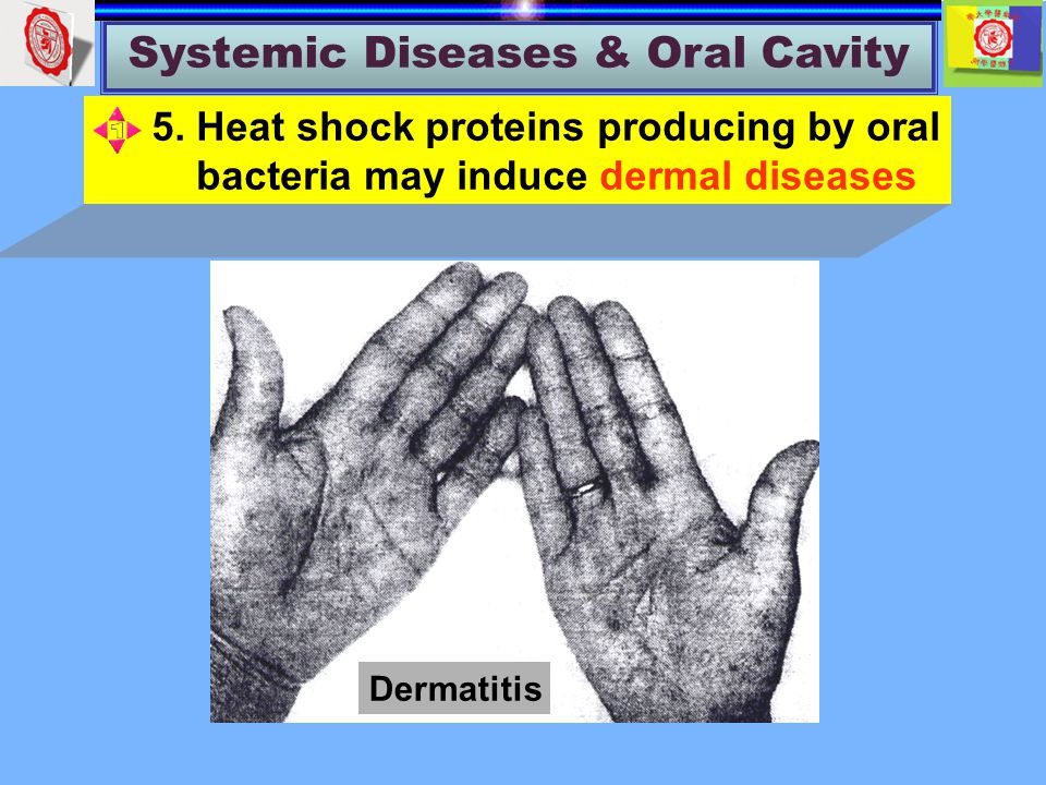Systemic Diseases & Oral Cavity Dermatitis 5.