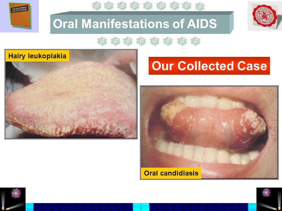 Hairy leukoplakia Oral candidiasis Our Collected Case