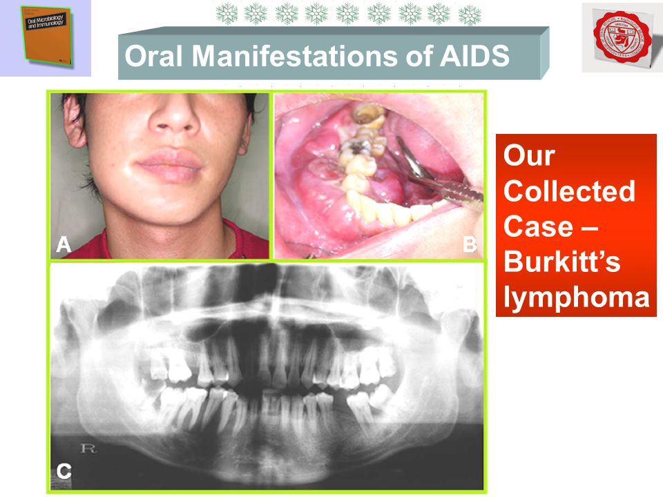 Oral Manifestations of AIDS Our Collected Case – Burkitt's lymphoma