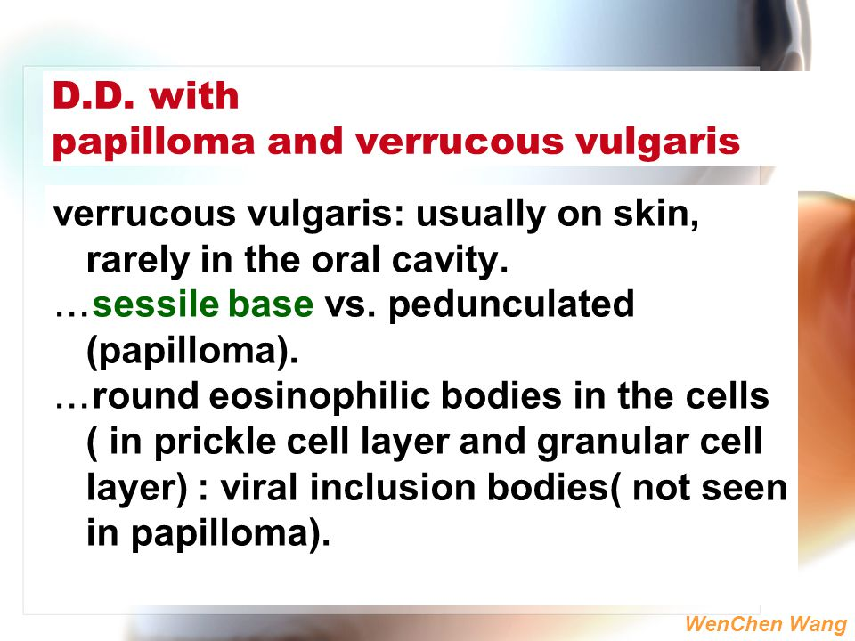 WenChen Wang D.D. with papilloma and verrucous vulgaris verrucous vulgaris: usually on skin, rarely in the oral cavity. …sessile base vs. pedunculated