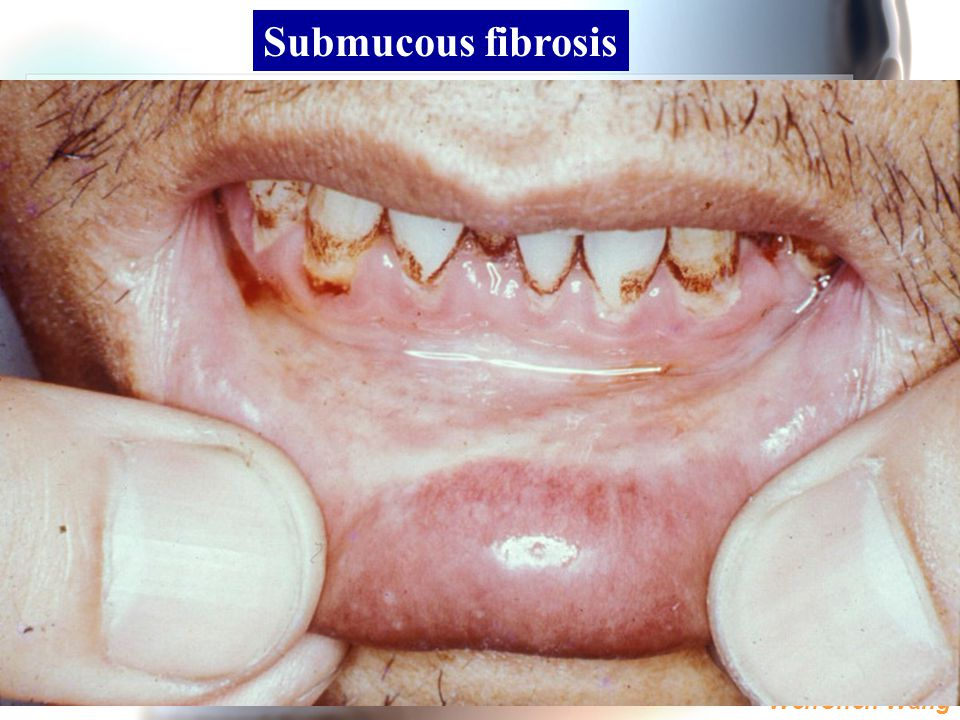 WenChen Wang Submucous fibrosis