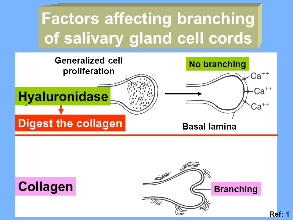 Factors affecting branching of salivary gland cell cords Hyaluronidase Collagen Generalized cell proliferation No branching Basal lamina Branching Digest the collagen Ref: 1