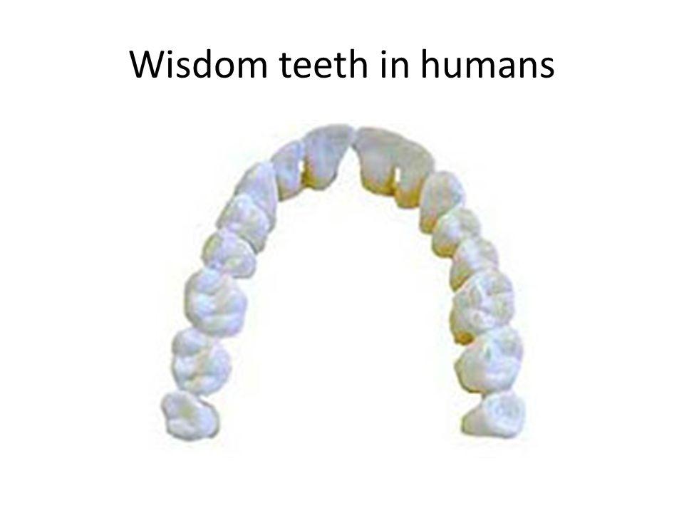 Wisdom teeth in humans