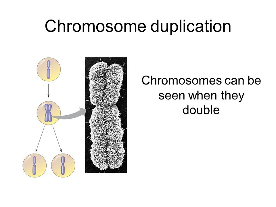 Chromosome duplication Chromosomes can be seen when they double
