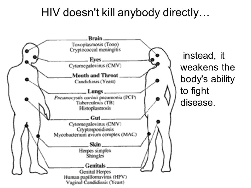 HIV doesn t kill anybody directly… instead, it weakens the body s ability to fight disease.