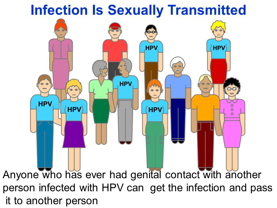 Infection Is Sexually Transmitted Anyone who has ever had genital contact with another person infected with HPV can get the infection and pass it to another person