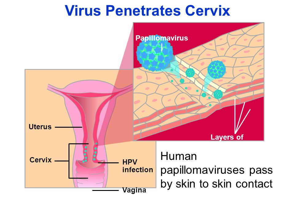 Virus Penetrates Cervix Uterus HPV infection Vagina Cervix Layers of epithelial cells Papillomavirus Human papillomaviruses pass by skin to skin contact
