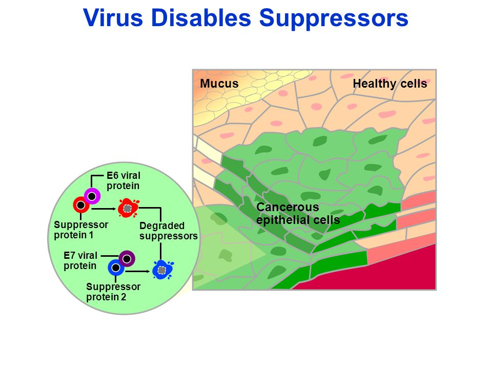 Virus Disables Suppressors Cancerous epithelial cells Suppressor protein 2 E7 viral protein Degraded suppressors Healthy cellsMucus E6 viral protein Suppressor protein 1