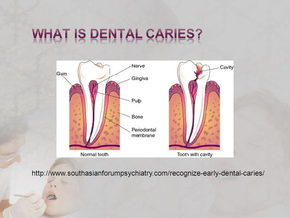 http://www.southasianforumpsychiatry.com/recognize-early-dental-caries/
