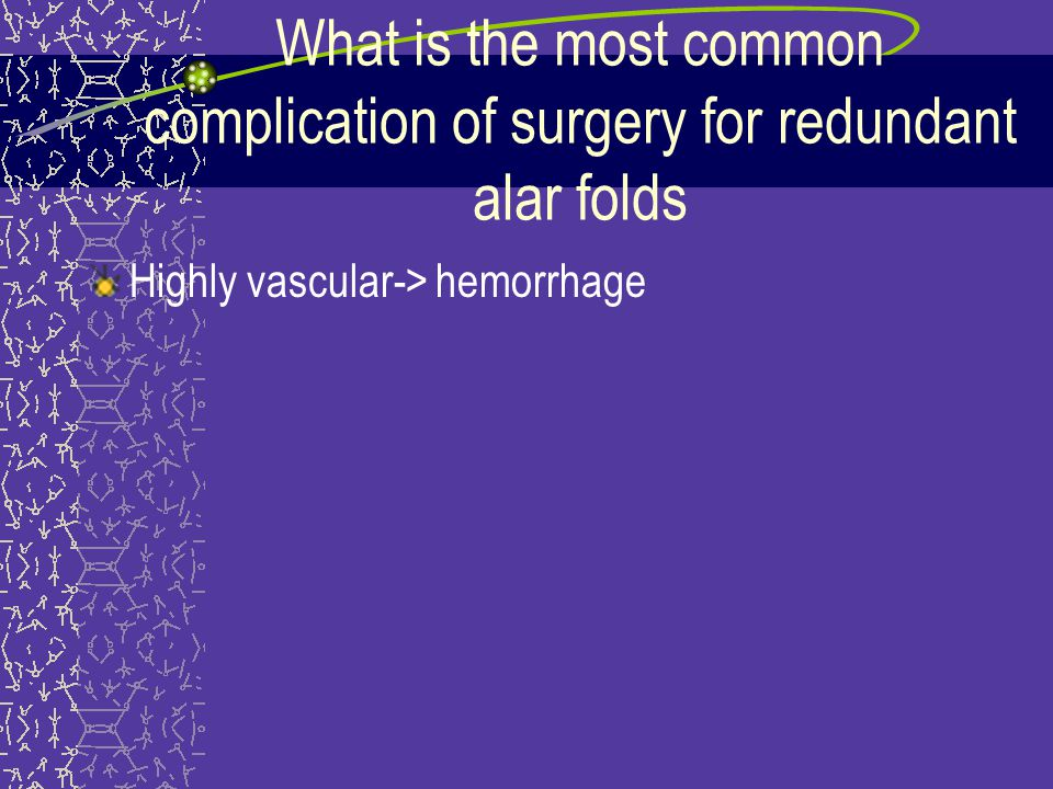 What is the most common complication of surgery for redundant alar folds Highly vascular-> hemorrhage