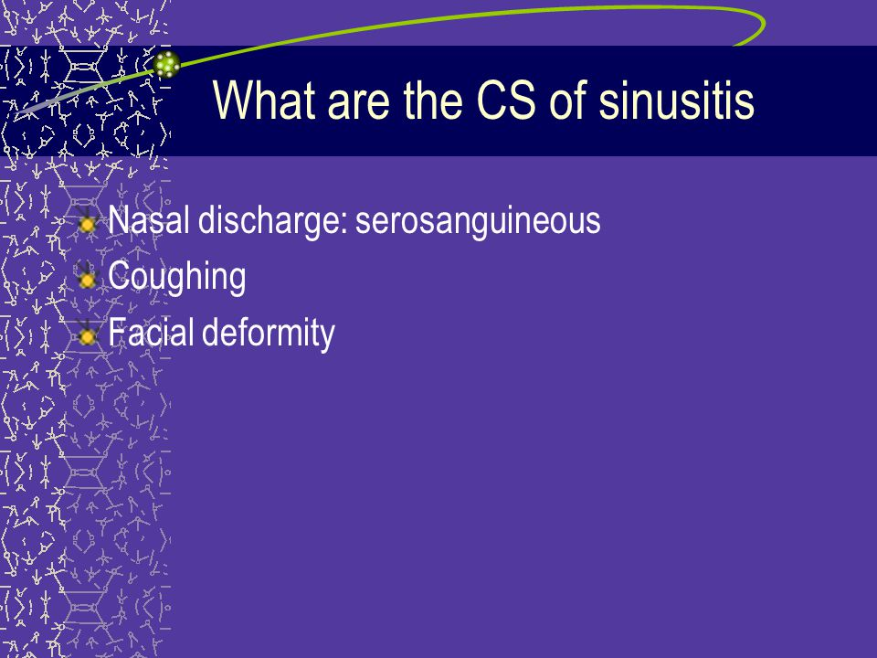 What are the CS of sinusitis Nasal discharge: serosanguineous Coughing Facial deformity