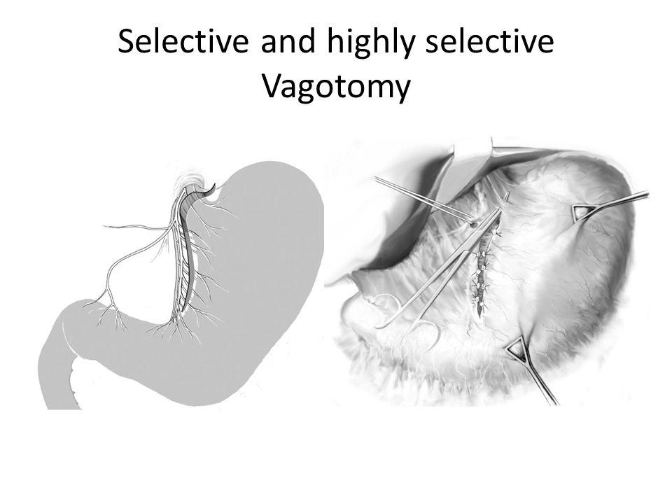 Selective and highly selective Vagotomy