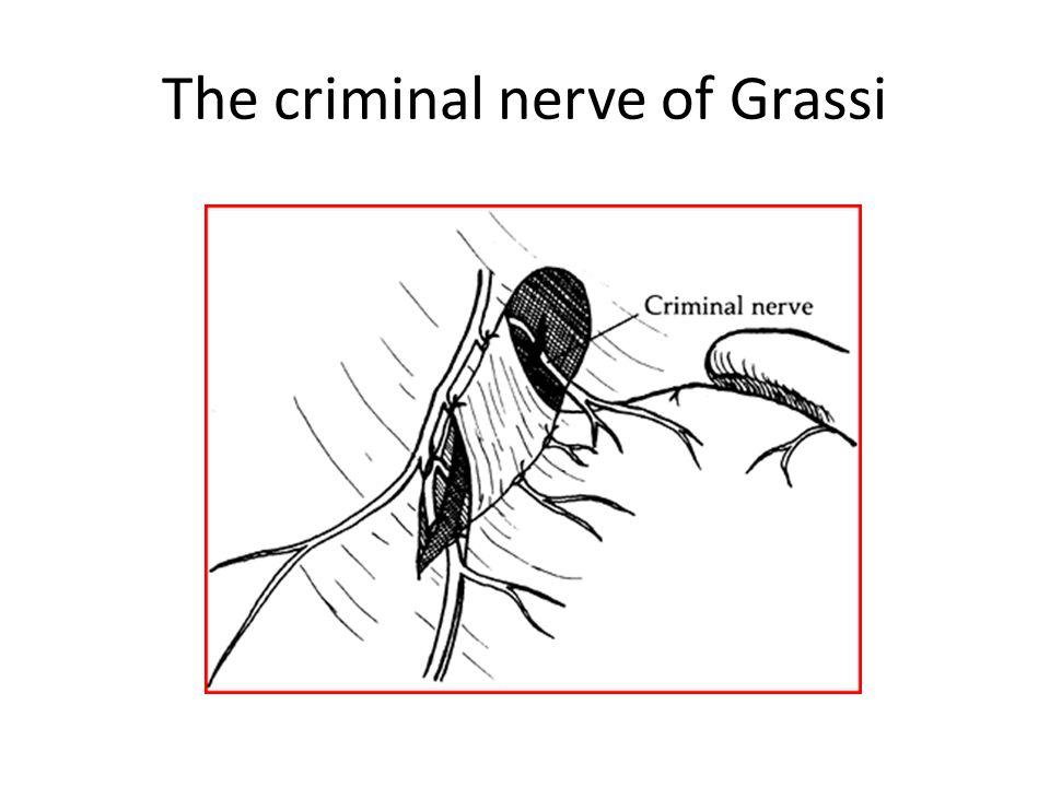 The criminal nerve of Grassi
