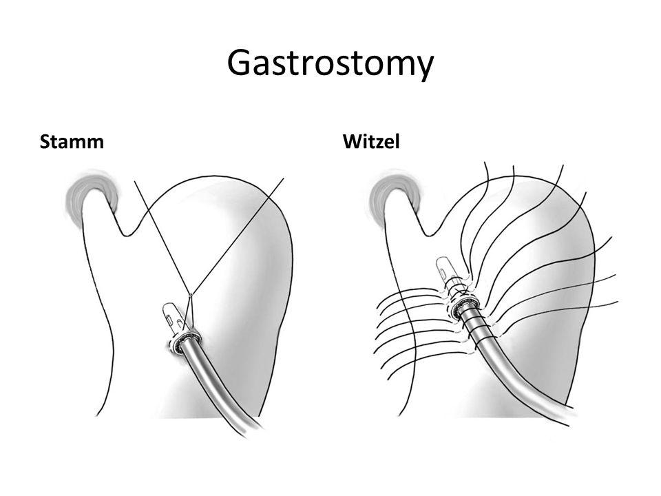 Gastrostomy StammWitzel