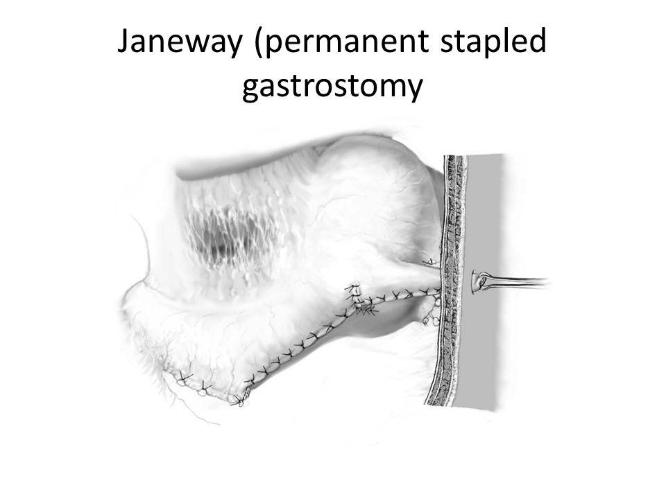 Janeway (permanent stapled gastrostomy