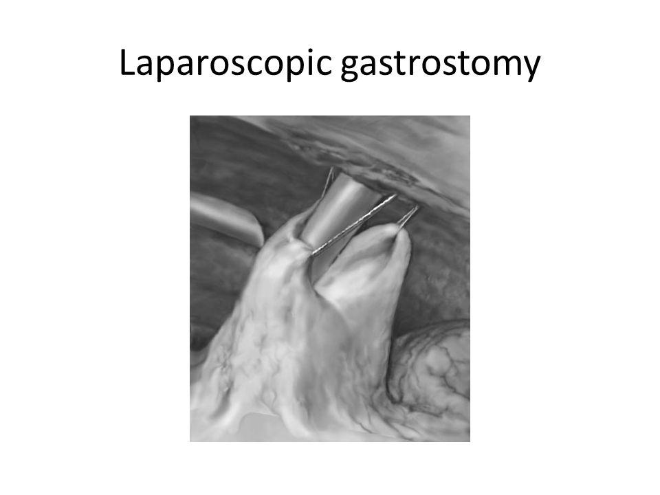 Laparoscopic gastrostomy
