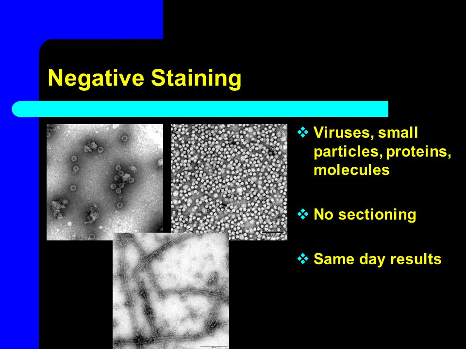 Negative Staining  Viruses, small particles, proteins, molecules  No sectioning  Same day results
