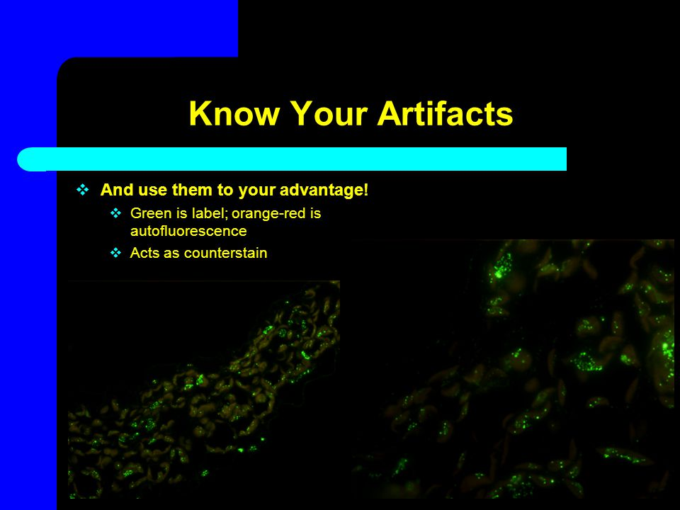 Know Your Artifacts  And use them to your advantage!  Green is label; orange-red is autofluorescence  Acts as counterstain