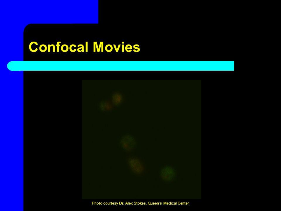 Confocal Movies Photo courtesy Dr. Alex Stokes, Queen's Medical Center