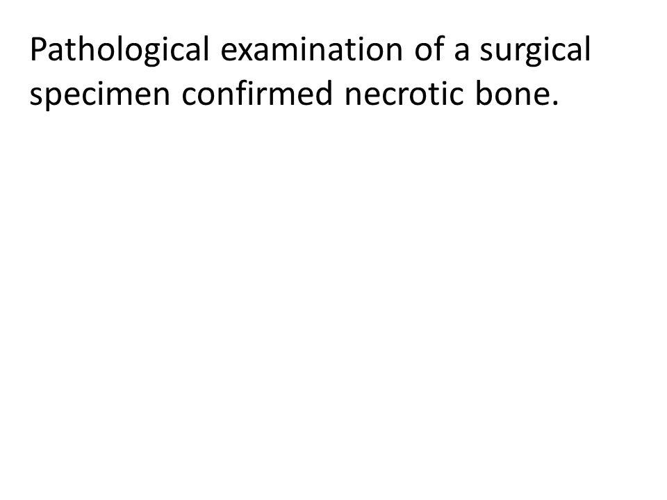 Pathological examination of a surgical specimen confirmed necrotic bone.