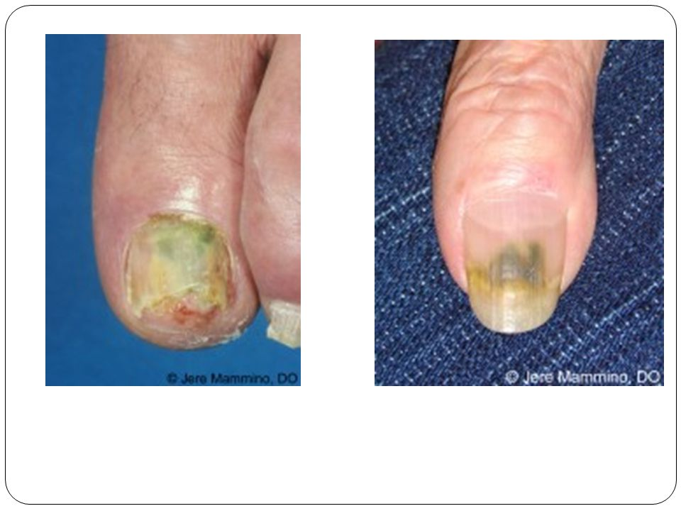 Green nail syndrome is caused by bacteria called Pseudomonas aeruginosa.