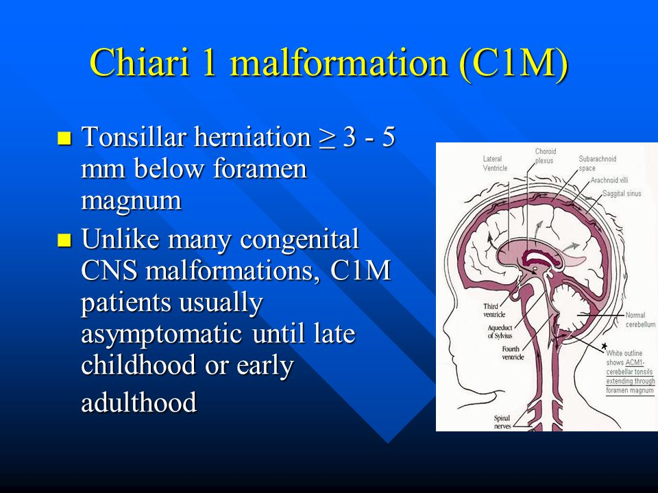 Chiari 1 malformation (C1M) Tonsillar herniation ≥ 3 - 5 mm below foramen magnum Tonsillar herniation ≥ 3 - 5 mm below foramen magnum Unlike many cong