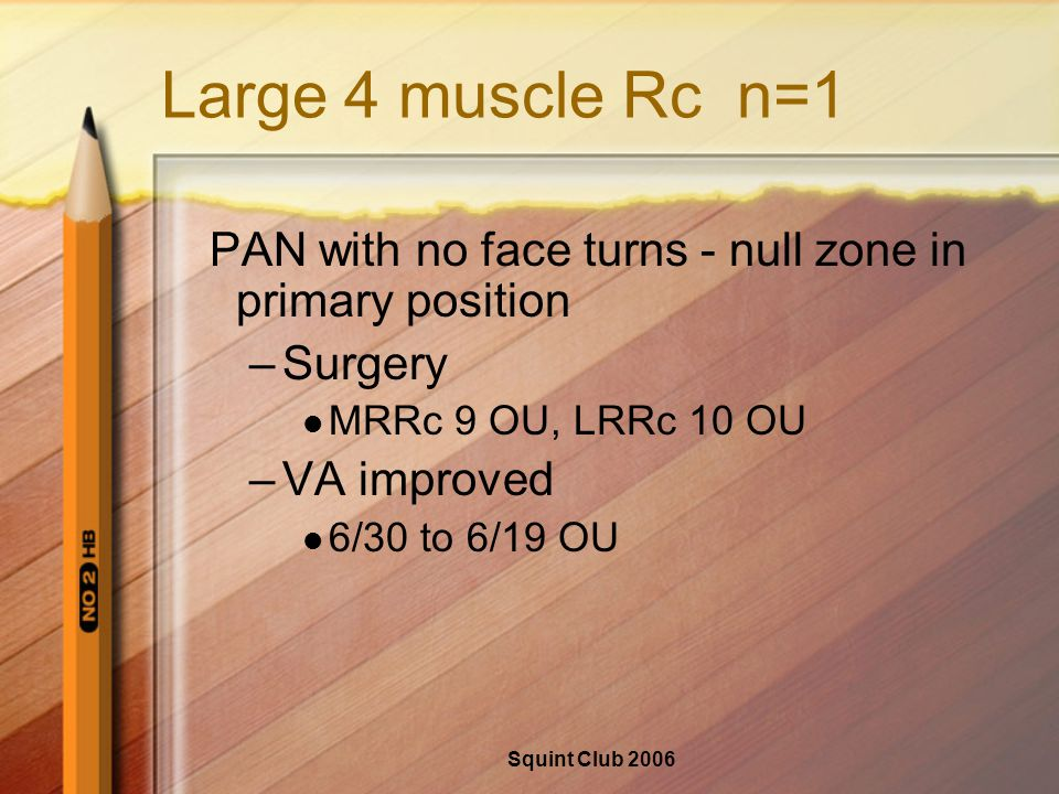 Squint Club 2006 Large 4 muscle Rc n=1 PAN with no face turns - null zone in primary position –Surgery MRRc 9 OU, LRRc 10 OU –VA improved 6/30 to 6/19 OU