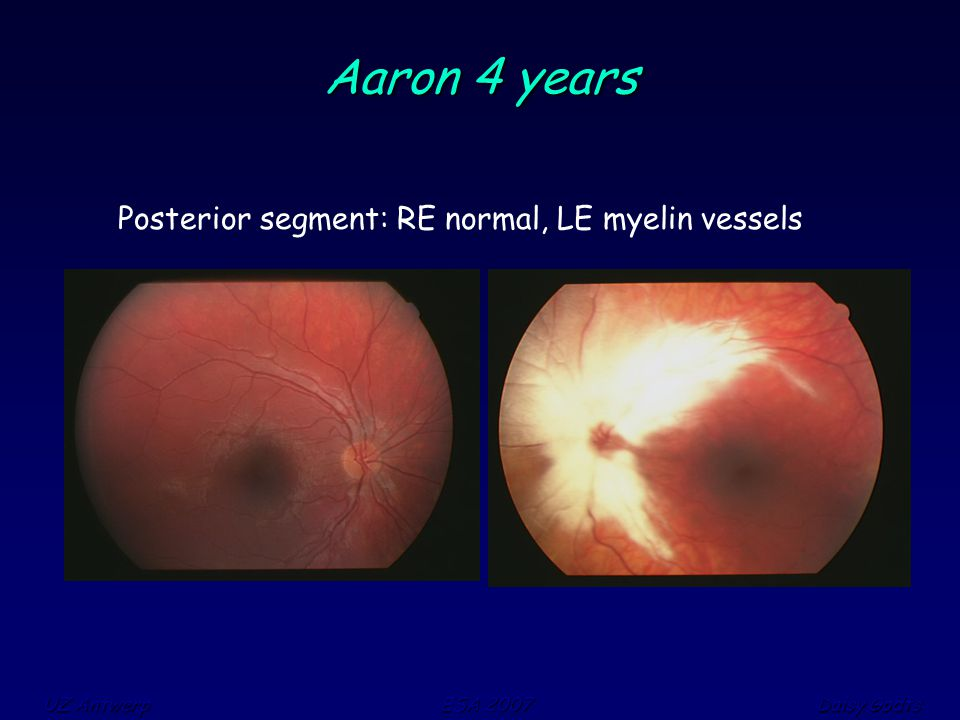 UZ Antwerp ESA 2007 Daisy Godts Aaron 4 years Posterior segment: RE normal, LE myelin vessels