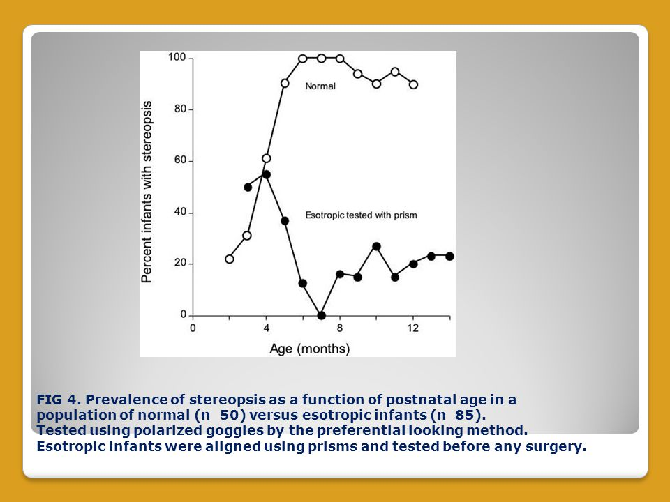 FIG 4. Prevalence of stereopsis as a function of postnatal age in a population of normal (n 50) versus esotropic infants (n 85). Tested using polarize