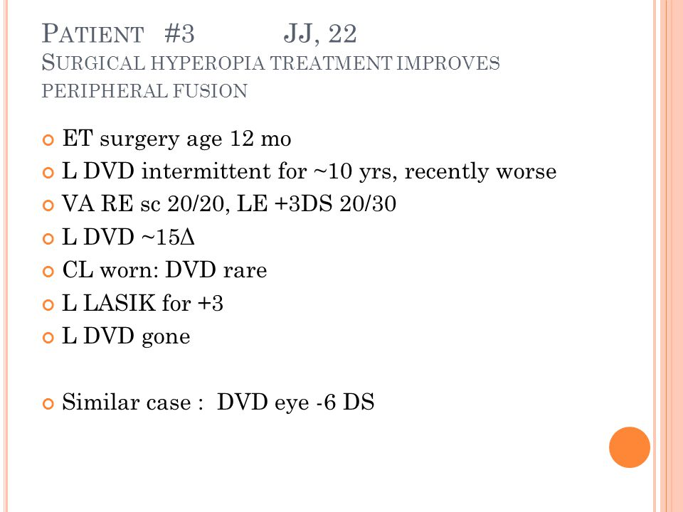 P ATIENT #3 JJ, 22 S URGICAL HYPEROPIA TREATMENT IMPROVES PERIPHERAL FUSION ET surgery age 12 mo L DVD intermittent for ~10 yrs, recently worse VA RE sc 20/20, LE +3DS 20/30 L DVD ~15Δ CL worn: DVD rare L LASIK for +3 L DVD gone Similar case : DVD eye -6 DS