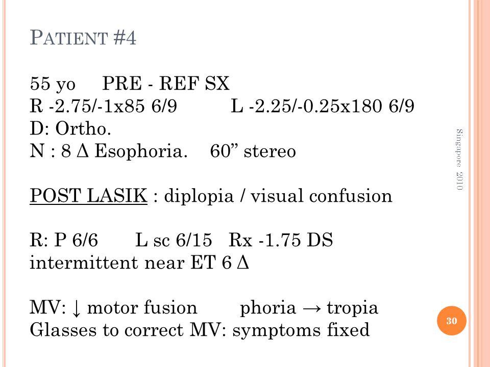 "P ATIENT #4 55 yo PRE - REF SX R -2.75/-1x85 6/9 L -2.25/-0.25x180 6/9 D: Ortho. N : 8 Δ Esophoria. 60"" stereo POST LASIK : diplopia / visual confusio"