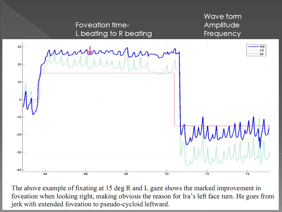 Foveation time- L beating to R beating Wave form Amplitude Frequency