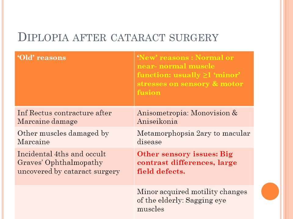 D IPLOPIA AFTER CATARACT SURGERY 'Old' reasons'New' reasons : Normal or near- normal muscle function: usually ≥1 'minor' stresses on sensory & motor f