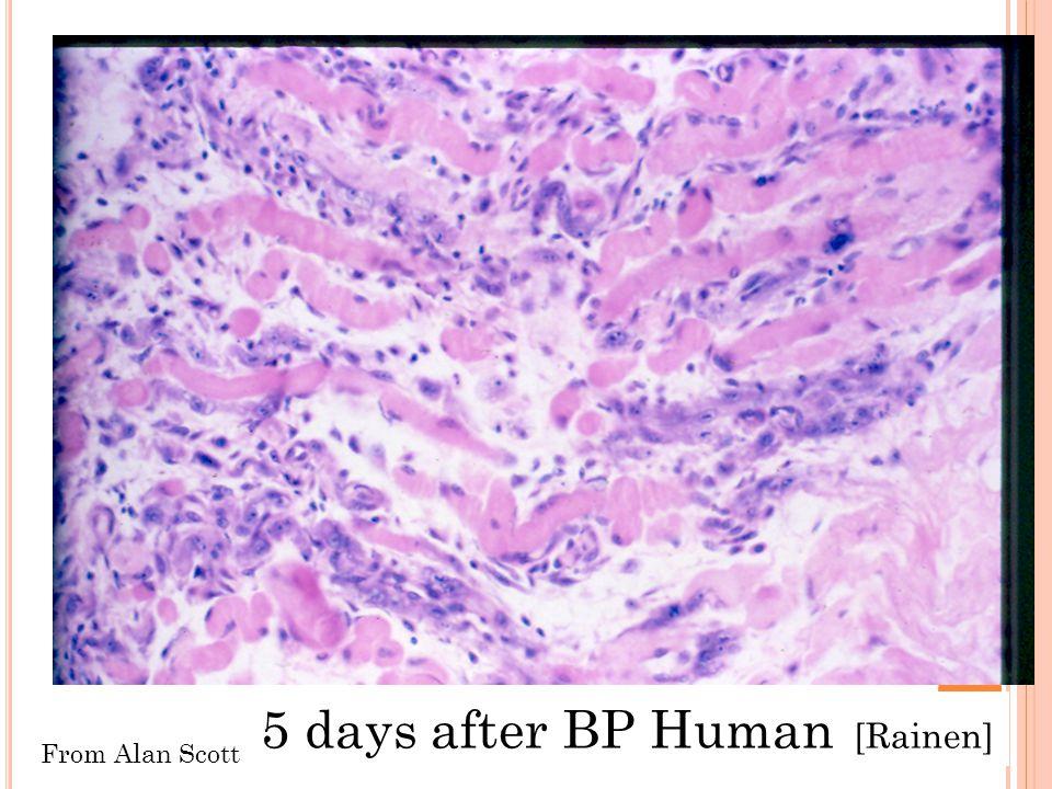5 days after BP Human [Rainen] From Alan Scott