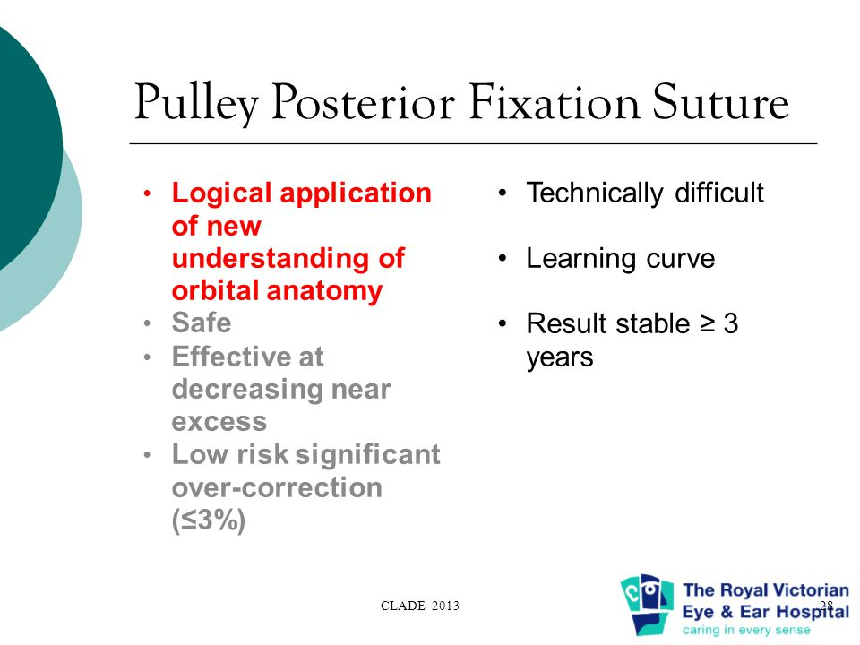 Pulley Posterior Fixation Suture Logical application of new understanding of orbital anatomy Safe Effective at decreasing near excess Low risk significant over-correction (≤3%) CLADE 201328 Technically difficult Learning curve Result stable ≥ 3 years