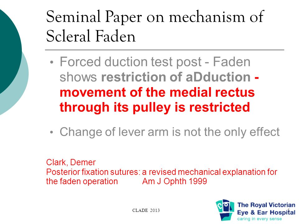 Seminal Paper on mechanism of Scleral Faden Forced duction test post - Faden shows restriction of aDduction - movement of the medial rectus through its pulley is restricted Change of lever arm is not the only effect Clark, Demer Posterior fixation sutures: a revised mechanical explanation for the faden operation Am J Ophth 1999 CLADE 20135