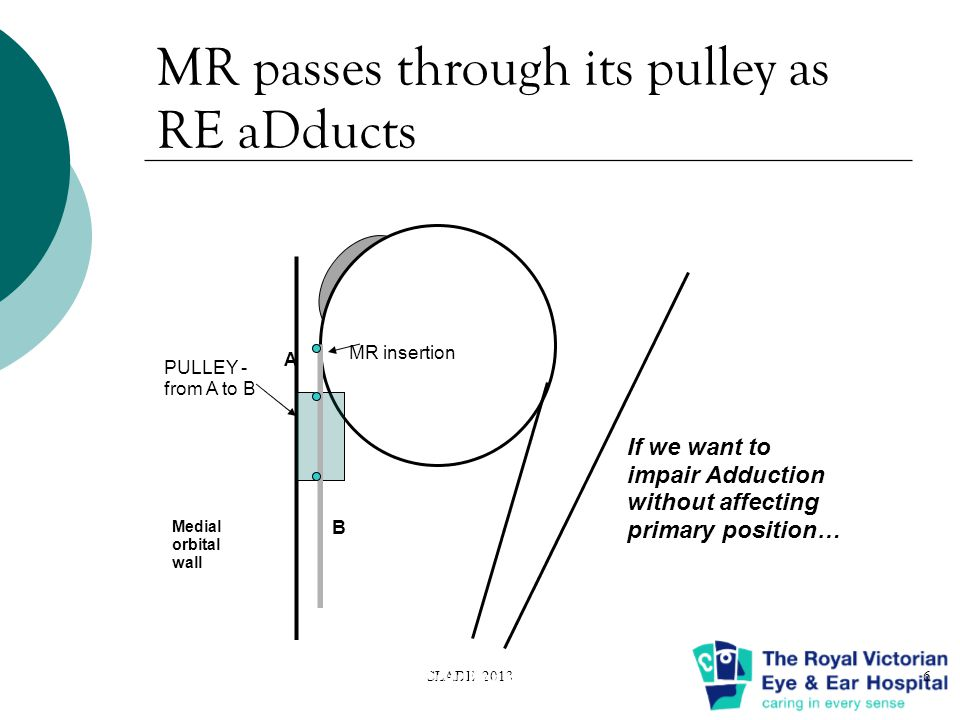 MR passes through its pulley as RE aDducts CLADE 20136 PULLEY - from A to B A B MR insertion Medial orbital wall A, B : ant & post extent of pulley sleeve If we want to impair Adduction without affecting primary position…