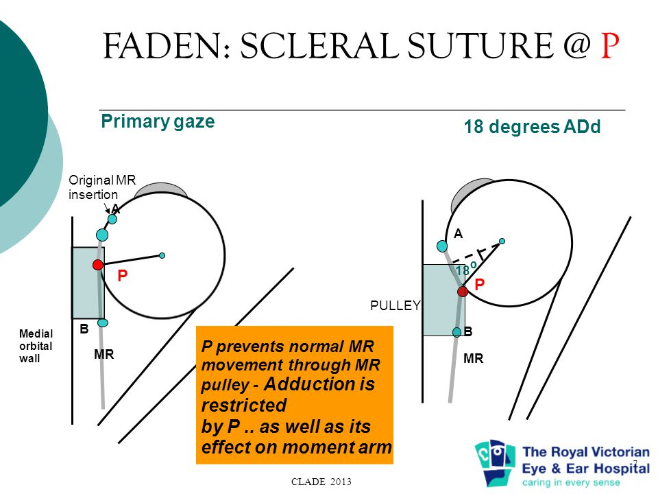 FADEN: SCLERAL SUTURE @ P CLADE 2013 7 Primary gaze 18 degrees ADd PULLEY MR 18 º A B P P prevents normal MR movement through MR pulley - Adduction is restricted by P..