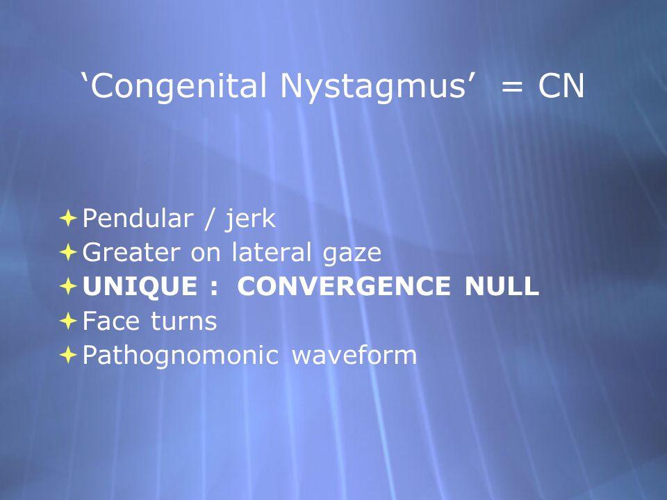 'Congenital Nystagmus' = CN  Pendular / jerk  Greater on lateral gaze  UNIQUE : CONVERGENCE NULL  Face turns  Pathognomonic waveform  Pendular /