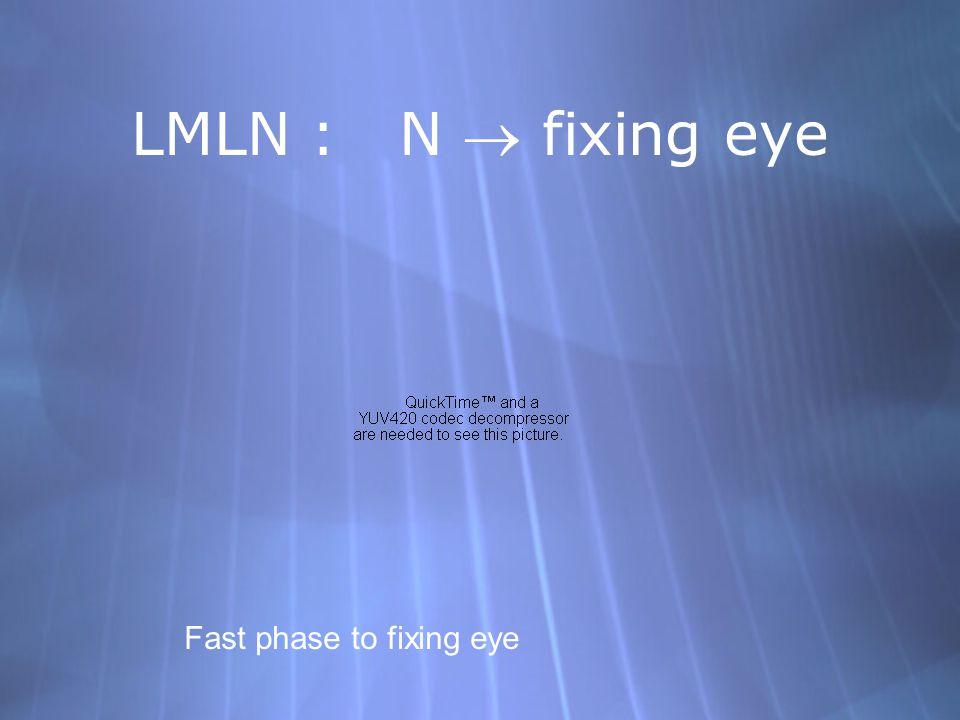 LMLN : N  fixing eye Fast phase to fixing eye