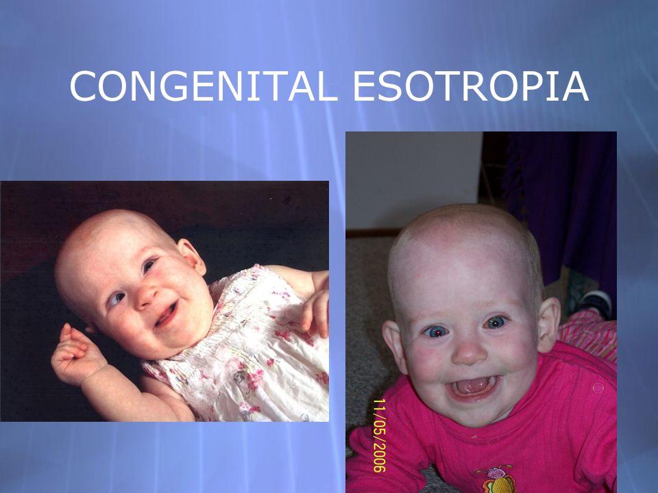 CONGENITAL ESOTROPIA