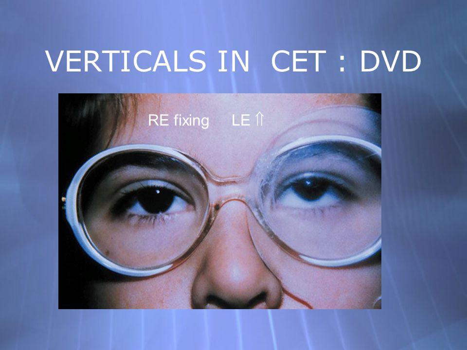 VERTICALS IN CET : DVD RE fixing LE 