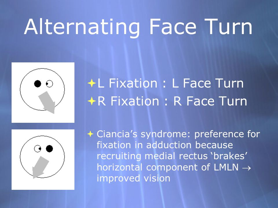 Alternating Face Turn  L Fixation : L Face Turn  R Fixation : R Face Turn  Ciancia's syndrome: preference for fixation in adduction because recruit