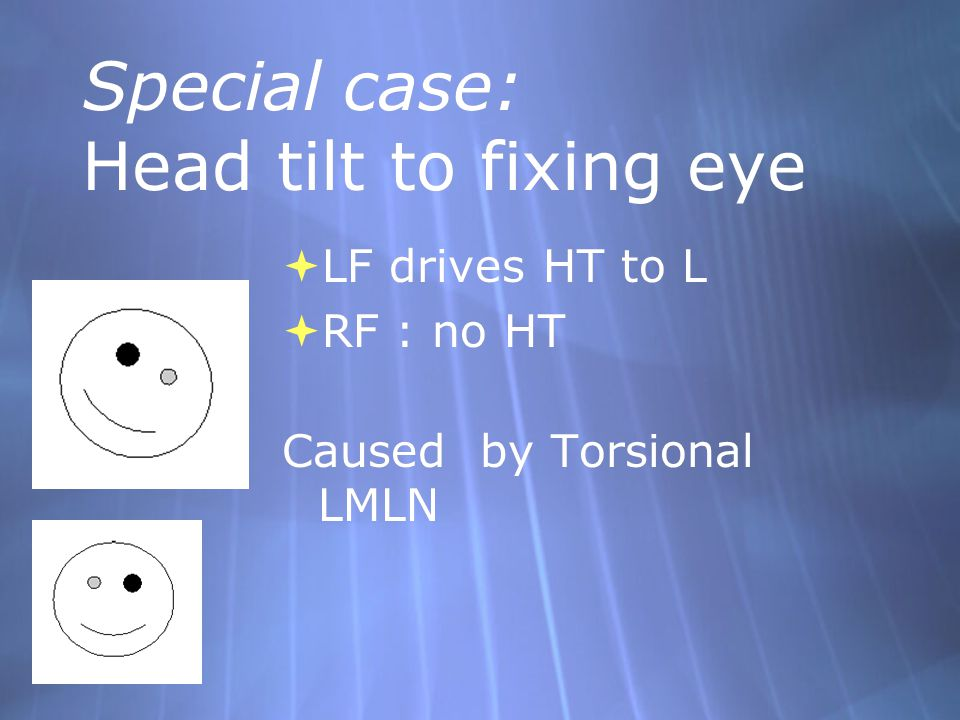 Special case: Head tilt to fixing eye  LF drives HT to L  RF : no HT Caused by Torsional LMLN  LF drives HT to L  RF : no HT Caused by Torsional L