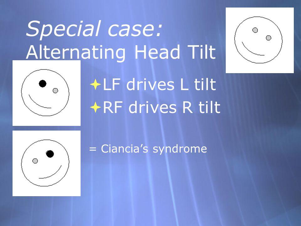 Special case: Alternating Head Tilt  LF drives L tilt  RF drives R tilt = Ciancia's syndrome  LF drives L tilt  RF drives R tilt = Ciancia's syndr