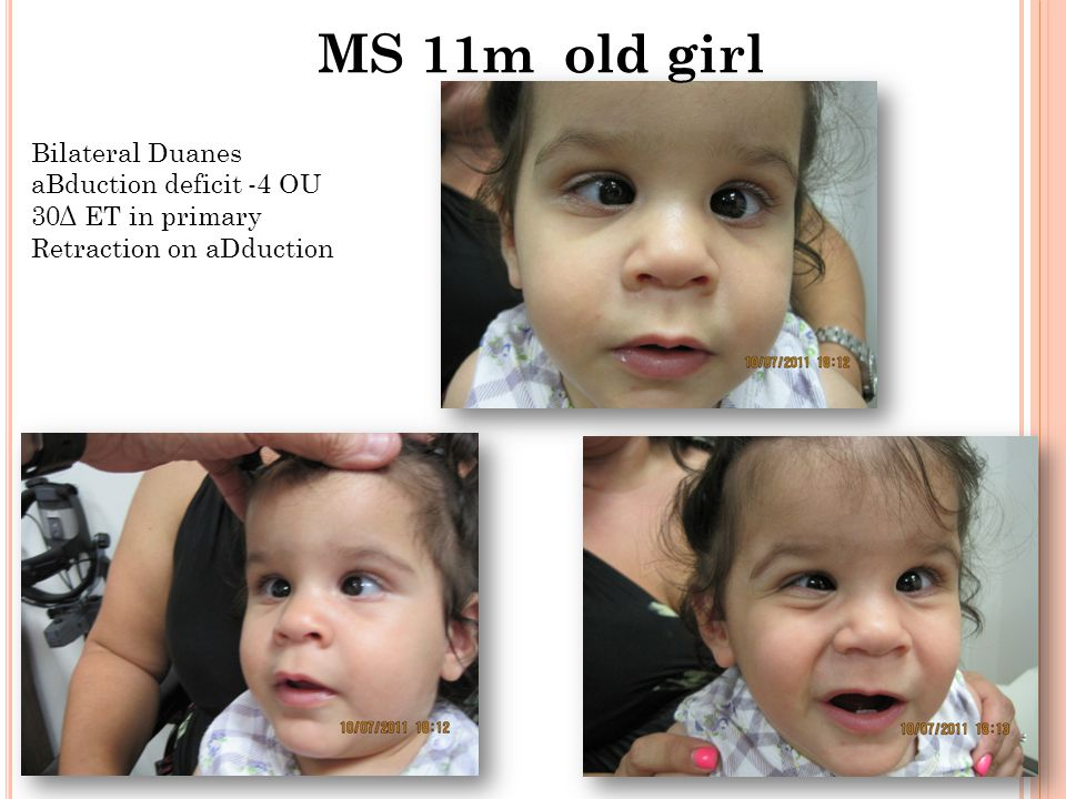 MS 11m old girl Bilateral Duanes aBduction deficit -4 OU 30Δ ET in primary Retraction on aDduction