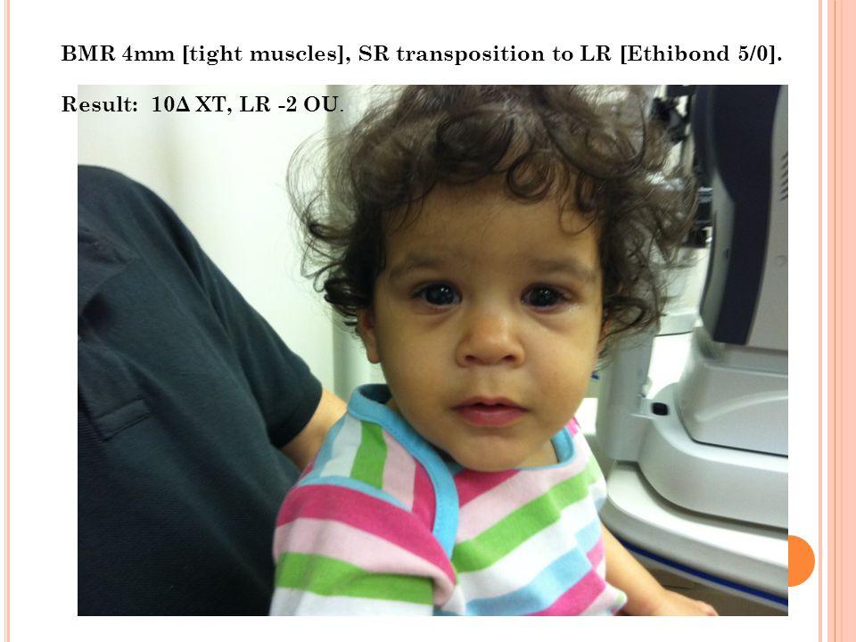 BMR 4mm [tight muscles], SR transposition to LR [Ethibond 5/0]. Result: 10Δ XT, LR -2 OU.