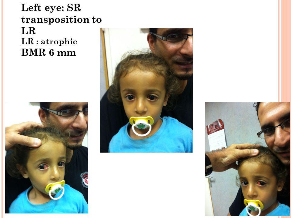 Left eye: SR transposition to LR LR : atrophic BMR 6 mm
