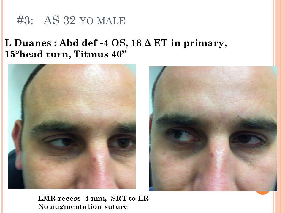 #3: AS 32 YO MALE L Duanes : Abd def -4 OS, 18 Δ ET in primary, 15°head turn, Titmus 40 LMR recess 4 mm, SRT to LR No augmentation suture